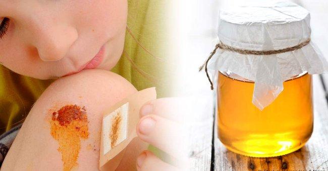 sát khuẩn vết thương công dụng của mật ong 17 Công dụng của mật ong khiến ai cũng phải bất ngờ mat ong 650